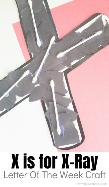Letter X Craft For Kids: X-ray. Kids will love this craft to learn about the letter X as well as strengthen creativity.